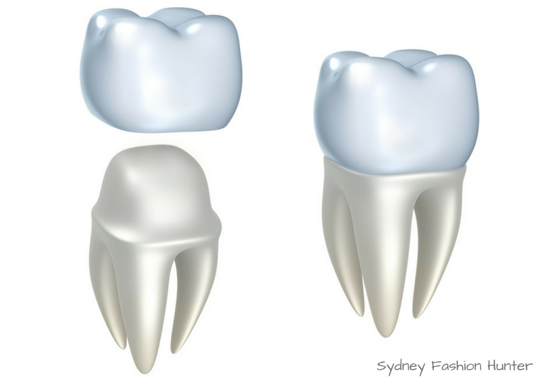 Fash Packing by Sydney Fashion Hunter: Destination Dentistry - Crown
